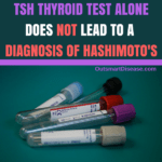 Women And Low Thyroid Best Tests