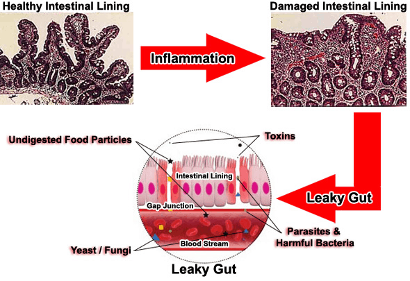 Leaky Gut Syndrome by Karen Brimeyer
