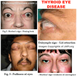 Signs of Thyroid Eye Disease