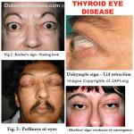 Signs of Thyroid Eye Disease