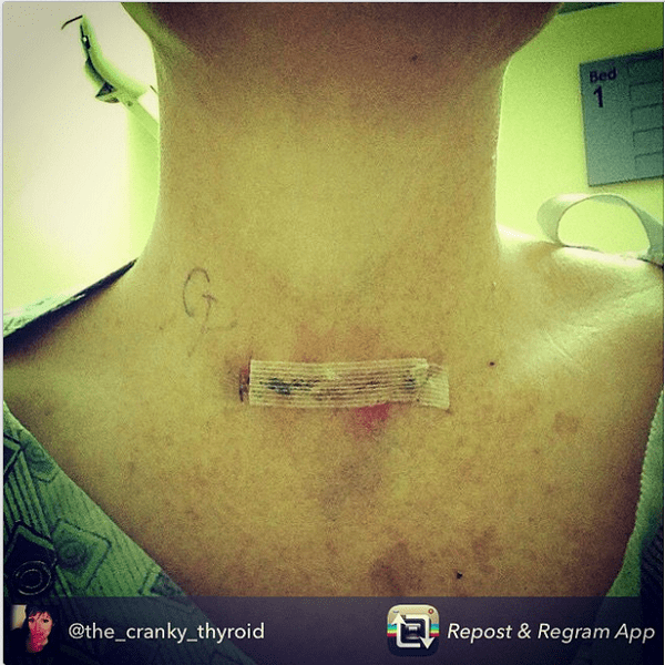thyroid scar