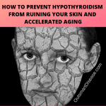 Hypothyroidism Dry Skin Treatment